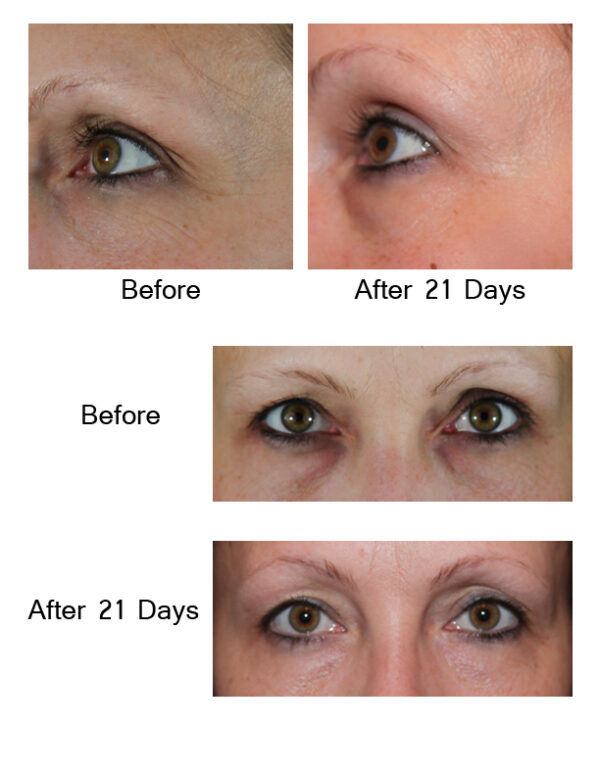 AQ Eye Serum Noorendav silmaümbruse seerum, 15 ml